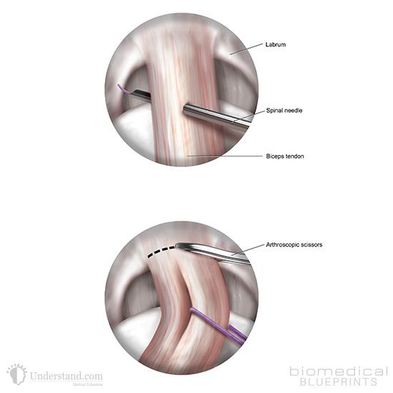 Biceps Tendon