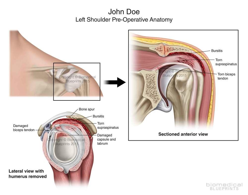 Unique Labrum Shoulder Anatomy Image Collection - Human Anatomy ...