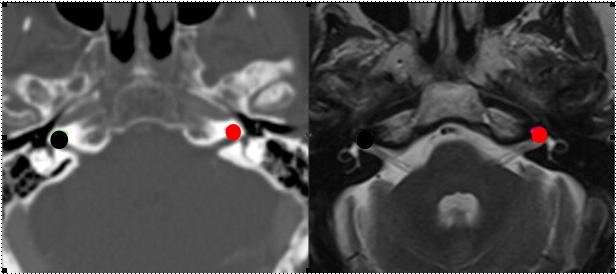 "Fig. 2 -imagem tomográfica a esquerda e uma RNM a direita com as cócleas delineadas (BROWNER C.L. et alii , 2015). Crédito de imagem: www.researchgate.net/figure/281144249_fig3_Delineation-of-the-cochlea-in-CT-bone-settings-left-matched-to-MRI-T2-right""><img"