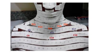 Figura         SEQ Figura \* ARABIC     1       Identificação dos pontos sobre os quais foram posicionados os TLDs para as medidas com a presença e sem a presença da máscara termoplástica.