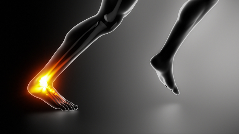 Achilles pain can be debilitating and frustrating if not treated properly.