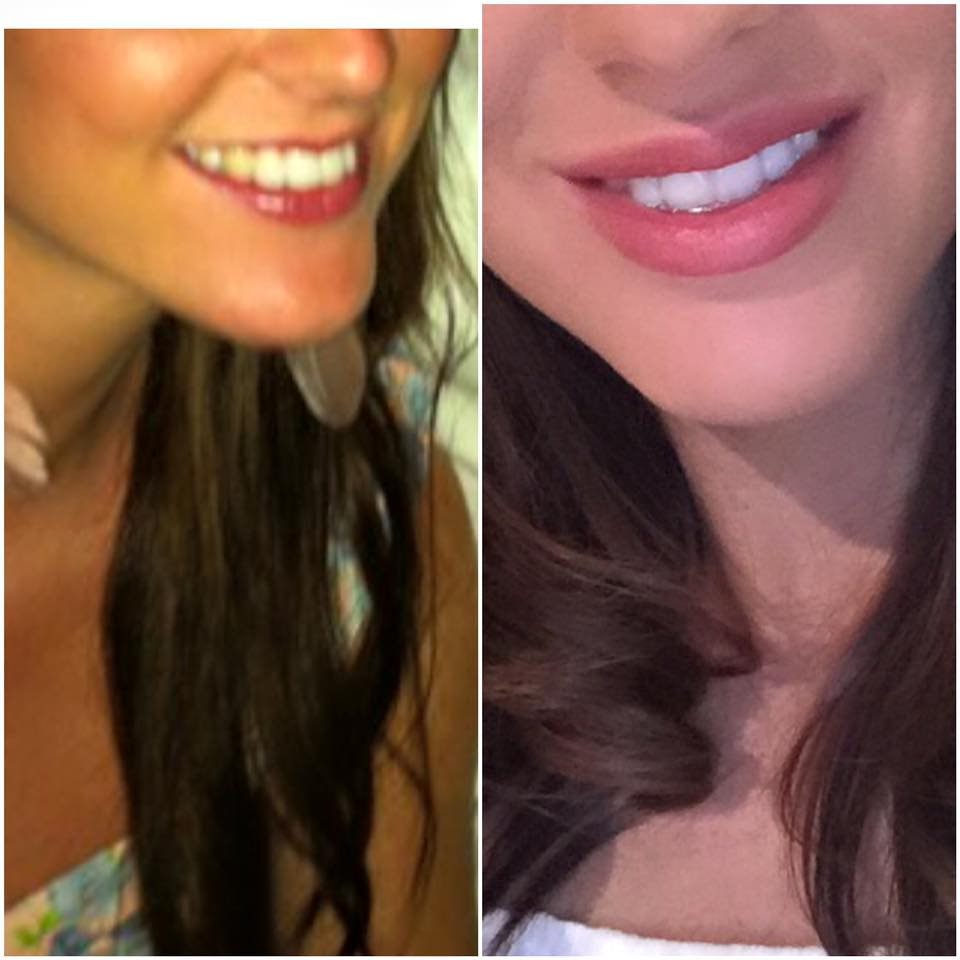Before and after pictures from a client who used my teeth whitening paste as well as the lip gloss