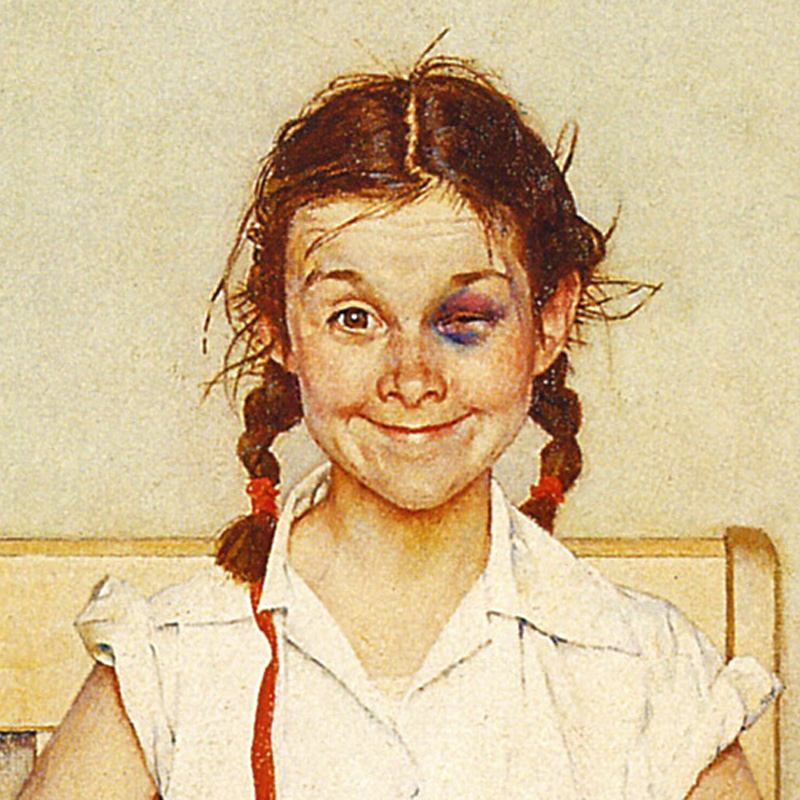 Rockwell's Girl with a Black Eye | VanillaArts.com