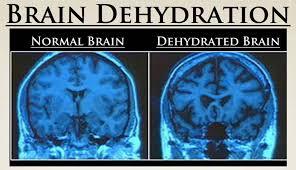 Is Your Brain Dehydrated Texan Alkaline Water
