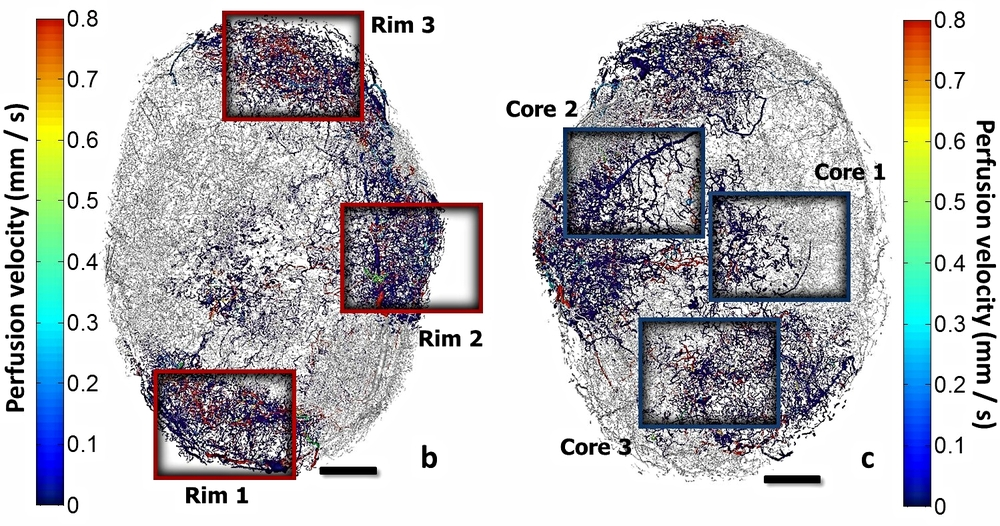 Image-based modeling of tumor blood flow in a breast cancer xenograft model [ Link to paper ].