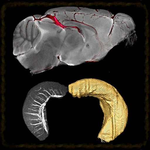 Integration of micro-CT and micro-MRI data to create a neurovascular mouse brain atlas.