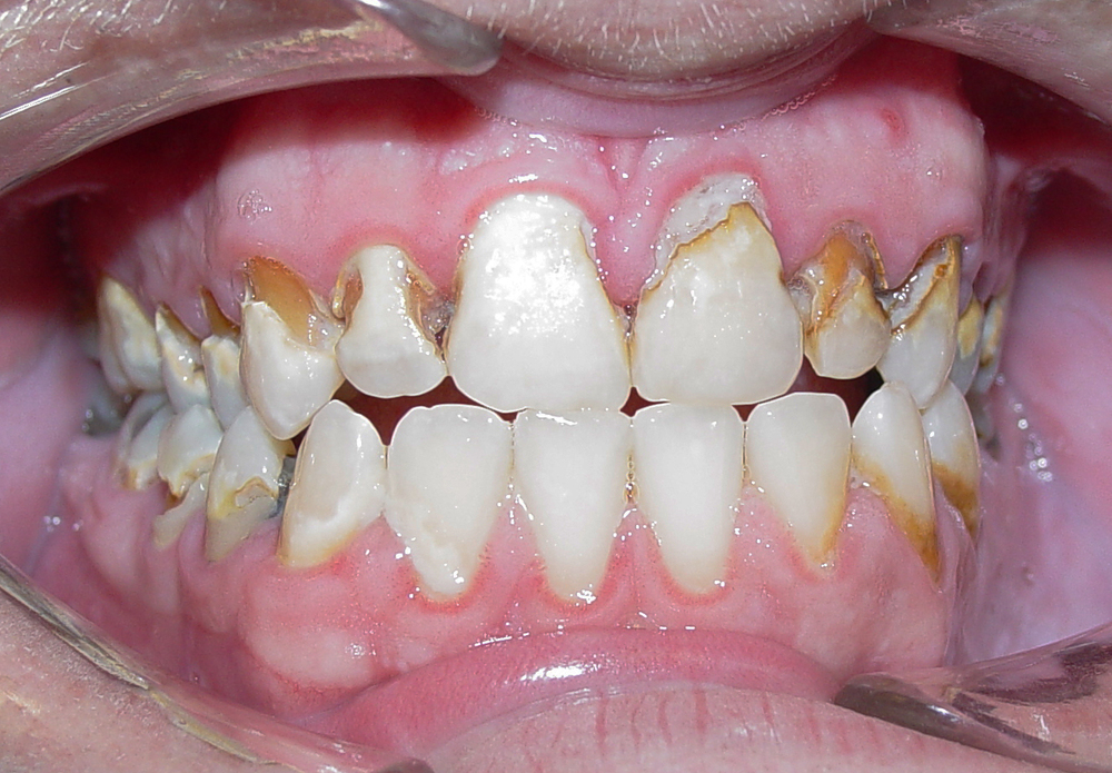 Before All maxillary (upper) teeth and most mandibular (lower) teeth presented with severe decay. Patient was young (20's) and desperately wanted to keep his teeth. Treatment involved several appointments of decay removal, root canals, periodontal (gum) surgery to lengthen his teeth, and the extraction of the second molars (non restorable, too much decay). All the maxillary teeth and mandibular posterior (back) teeth were prepared for aesthetic porcelain fused to metal crowns.