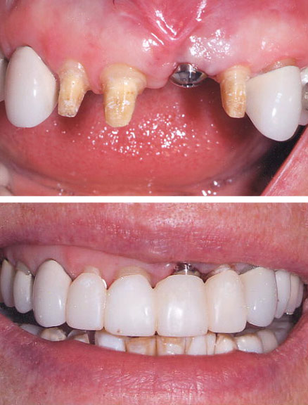 During treatment After the affected tooth was extracted and the dental implant was placed, a temporary cemented bridge was fabricated to avoid wearing anything removable during the course of treatment. Esthetic crown (gum) lengthening was performed on the incisors to allow a better match of the incisal crowns to the canines