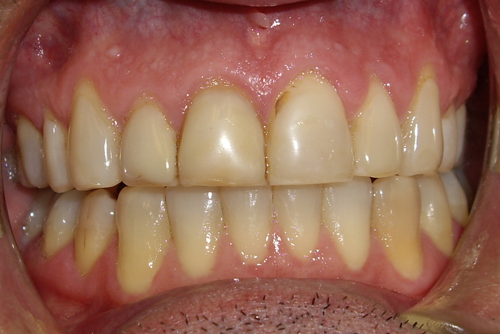 Before treatment  Patient wished to have the shape and color of his teeth restored to their more youthful form.