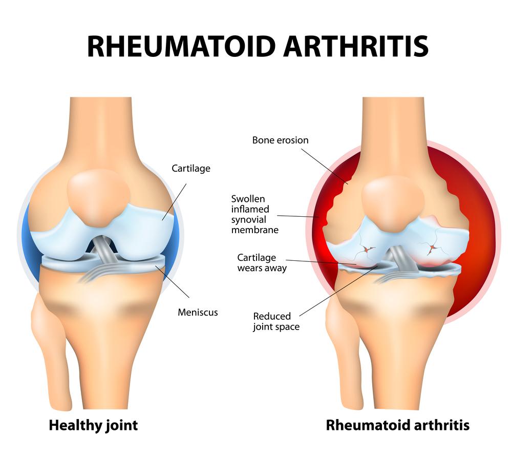rheumatoid-arthritis-joint-damage