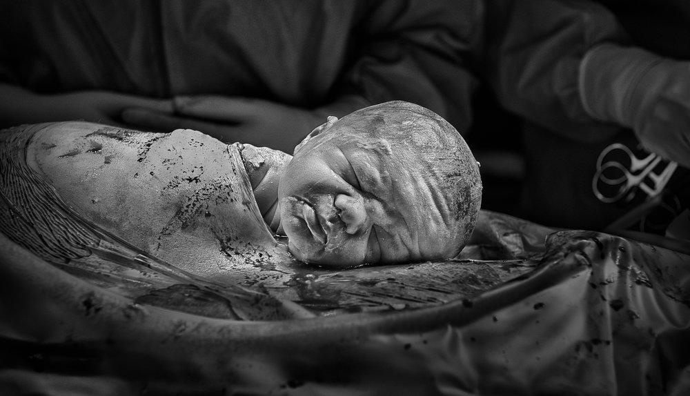 14 - A family-centered gentle Cesarean birth