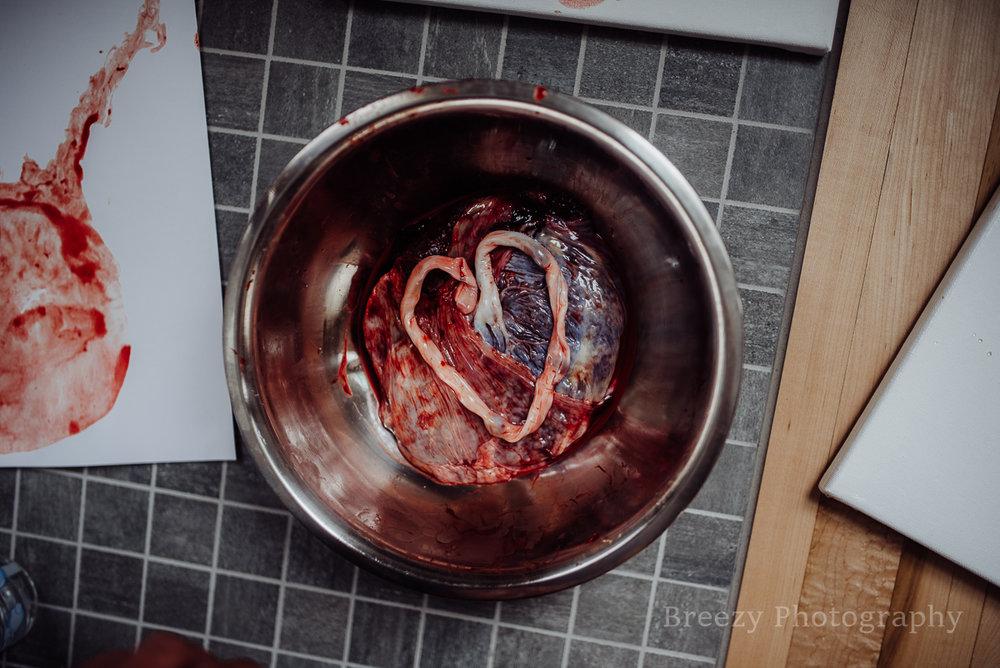 umbilical cord, placenta, placenta print