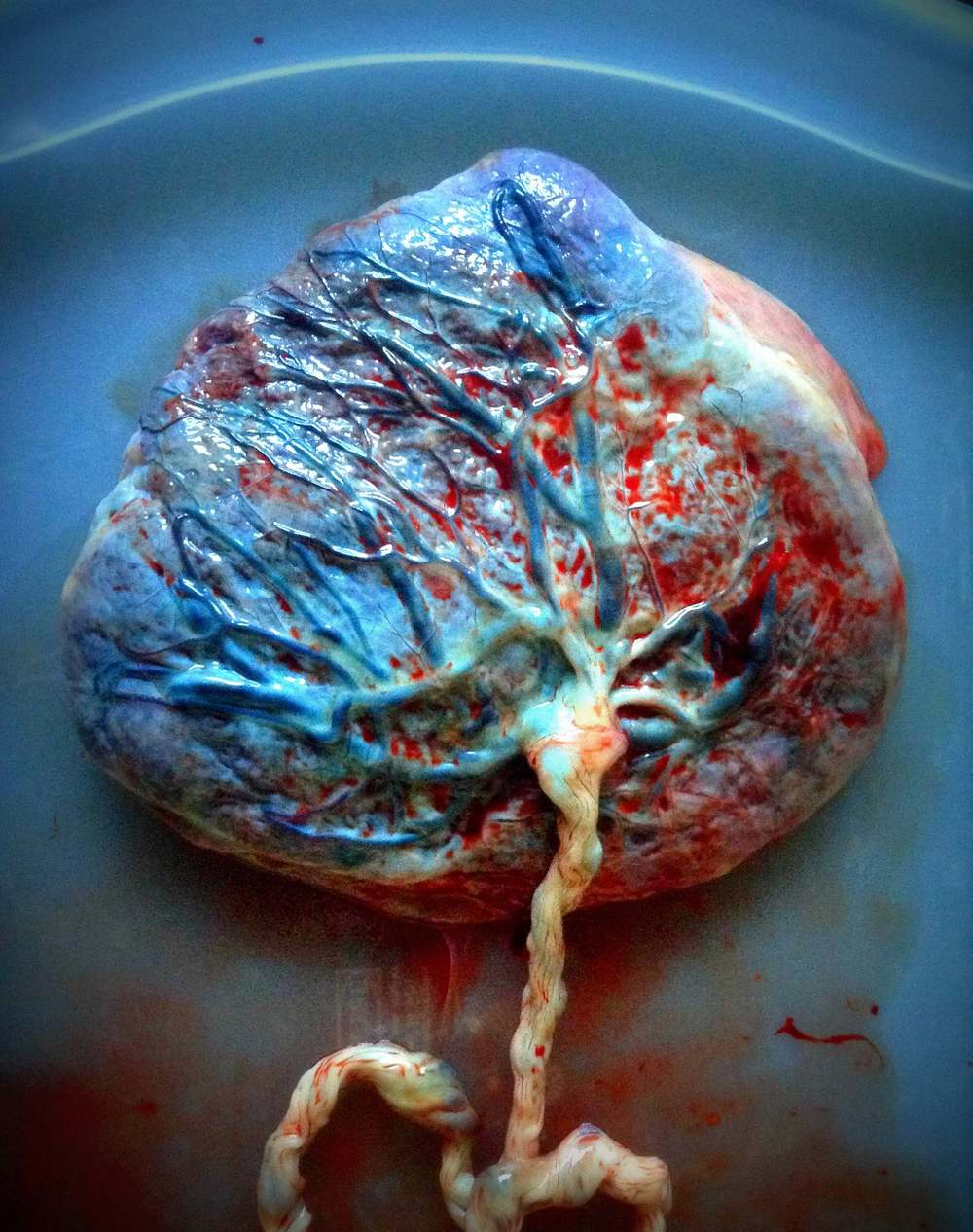Placenta Photography:  typical photos provided are of the placenta's fetal side, the maternal side, and any other interesting angles or features.