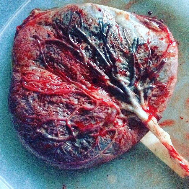 Gorgeous life giving placenta!  #placenta #takebackpostpartum #pregnancy #birth