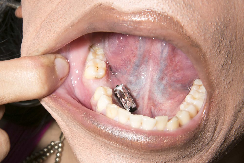 NadiA shows her mouthful of cavities and missing tooth which she adorns with a fake diamond.