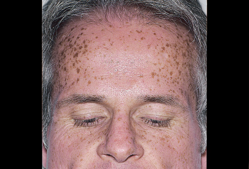 Liver Spots 1