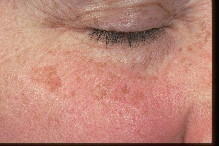 Blog — Phillips Aesthetic Dermatology