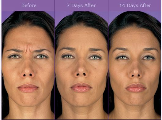 Injectables Amp Fillers Phillips Aesthetic Dermatology