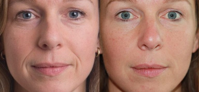 dermal-fillers-before-after.jpg