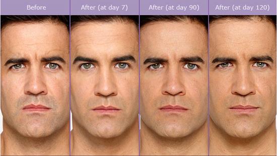 male-botox.jpg