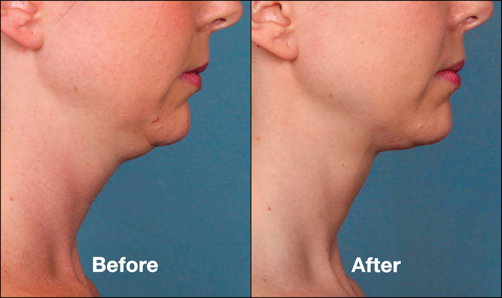 KybellaPatientPRI1BeforeAfter(SideView).jpg