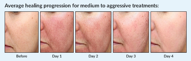 While skin appears recovered after 3-5 days post-treatment, continued benefit occurs under the skin surface for the next few months. This benefit is compounded with repeat treatments.