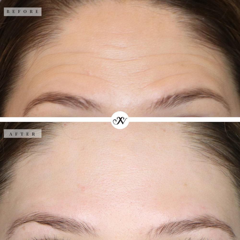 Forehead lines_B&A.jpg