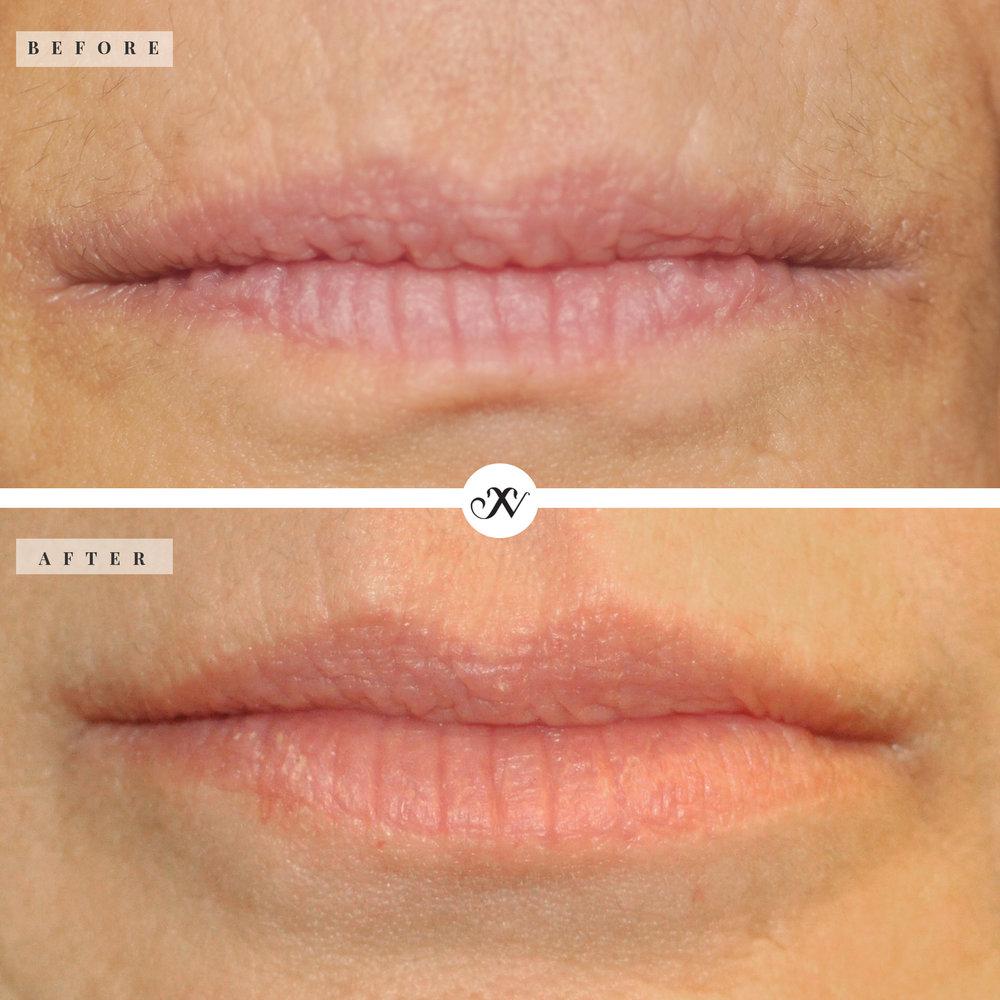 Lips _B&A_2.jpg