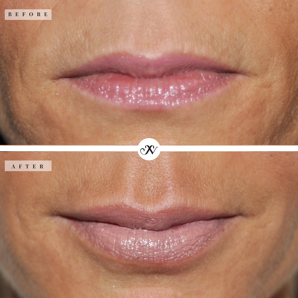 Lips_square_B&A_website.jpg