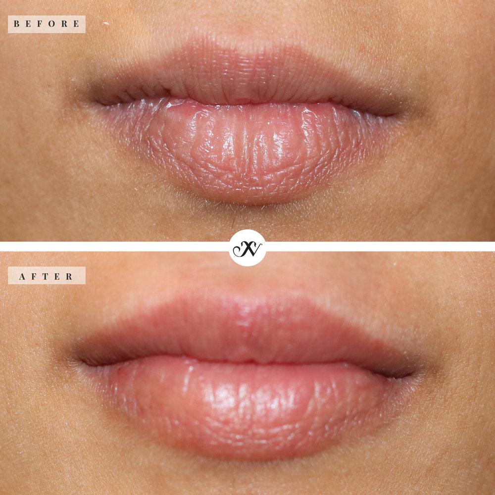 Lips_B&A.jpg