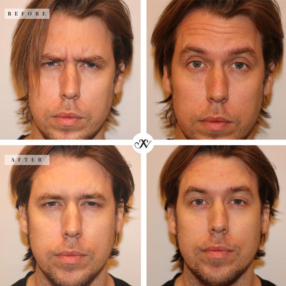 Botox-Injection_B&A_square.jpg