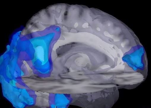 Figure 3_Brain network activation.JPG
