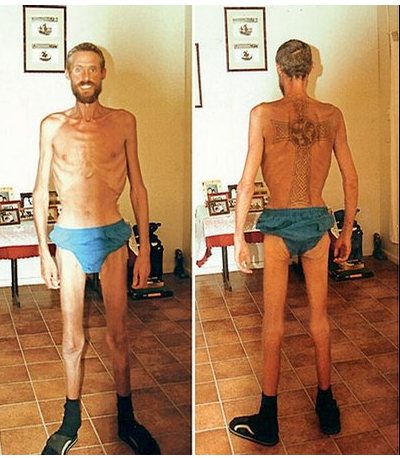 Ricky Megee lost over half his body weight while stranded in the Australian outback for 70 days.