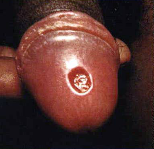 A primary syphilitic chancre on the head of the penis