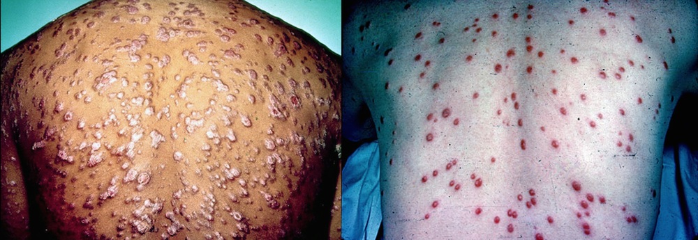 Two good examples of the rash of secondary syphilis. All those spots are teeming with infectious bacteria.