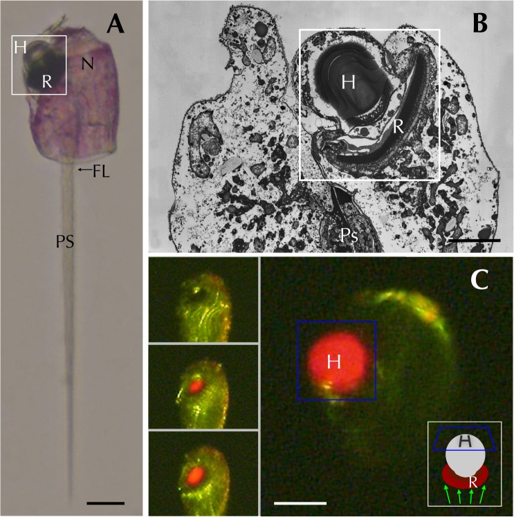 Here's looking at you. Figure is from Hayakawaet al. (2015) PLoS ONE. The ocelloid parts are marked by H and R. See the paper for more details.