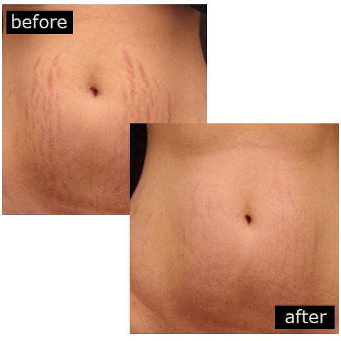 microneedling stretch marks