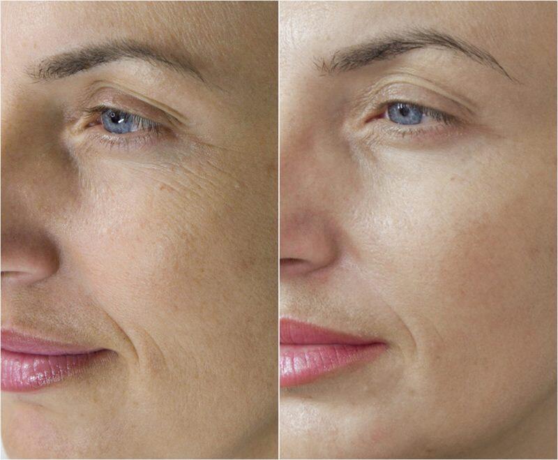 microneedling facial.jpeg