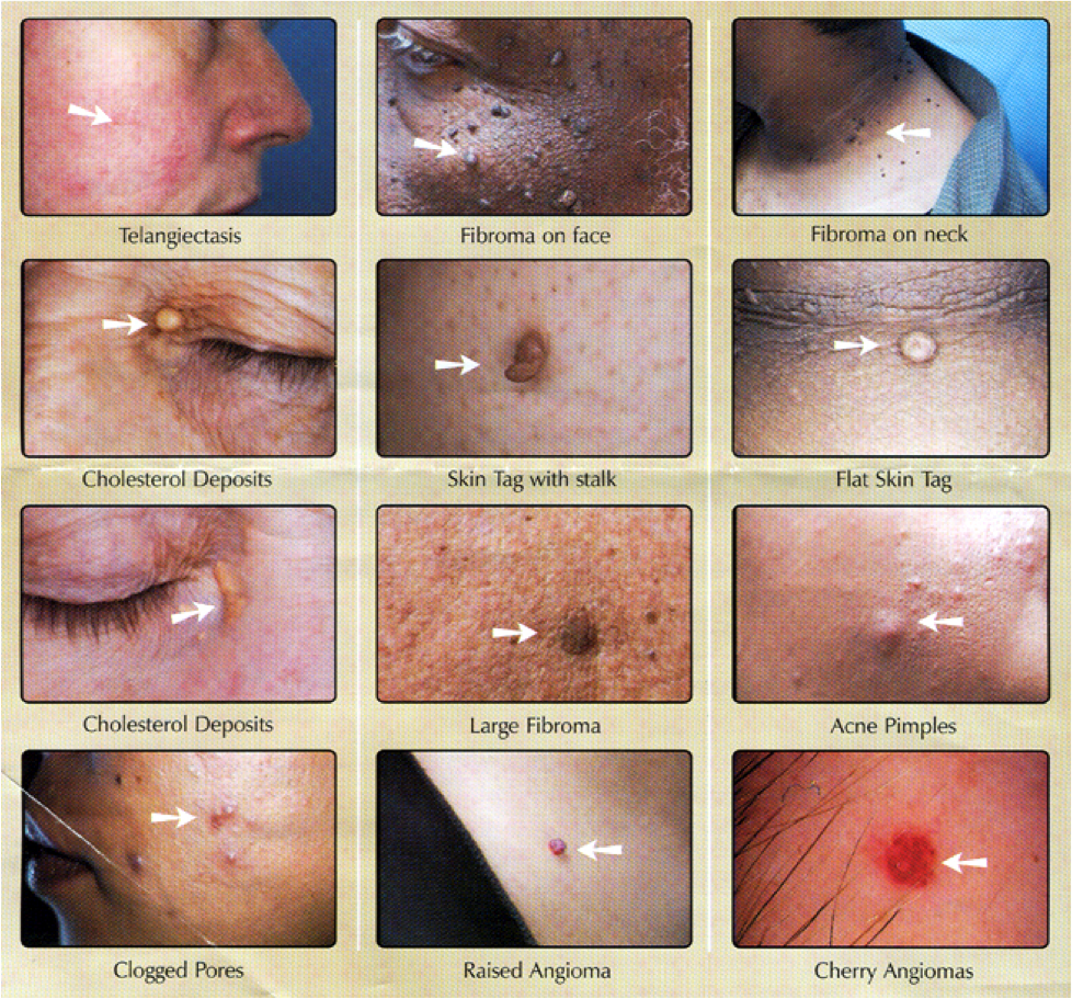 skin-spots-removal-houston-texas.png