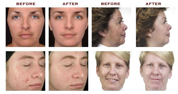 before-after-hydro-facial-aquapeel.jpg