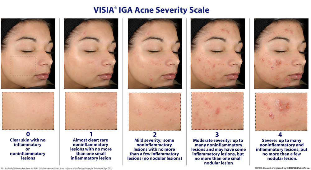 Acne is a common inflammatory skin condition and may result in atrophic, hypertrophic or keloid scars. Acne scars can cause significant psychological distress and social impact.To reduce the chance of scarring, seek anti-acne treatment options for your acne early. Severe acne can often be cured. Choose from the list of  Anti - Acne Treatments Scale By Severity Below