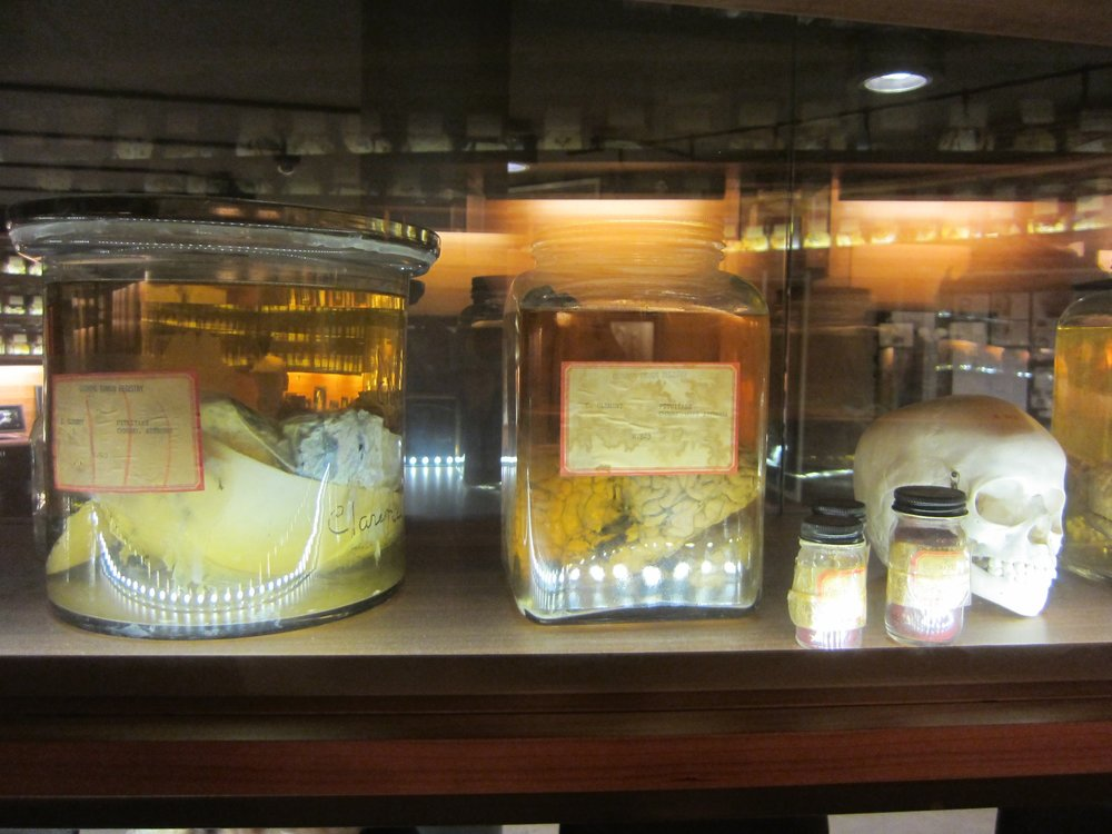 Cushing Brain Collection, New Haven. (techbint/Flickr Creative Commons)