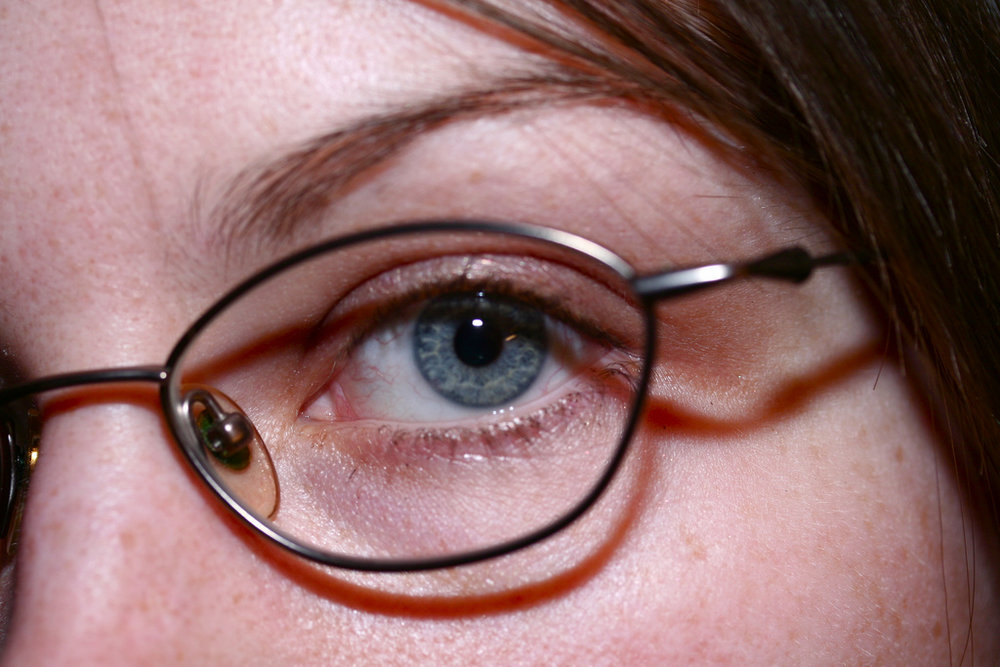 Having poor vision is rough.  Anyone with glasses can understand that.  (Melanie Hayes/Flickr Creative Commons)