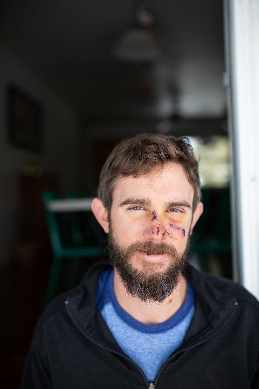 Travis Kauffman Mountain Lion Attack-9056.jpg