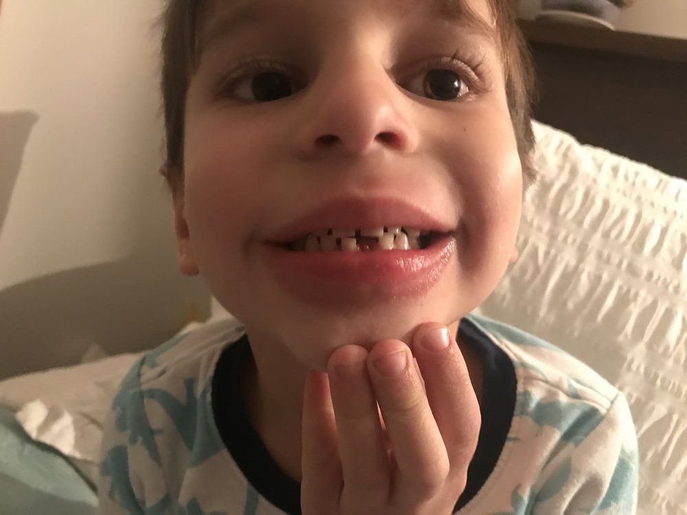 b6eda35ab1b9 Charlie lost his first tooth. Also