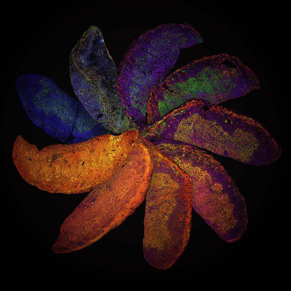 Plazenta Regenbogen