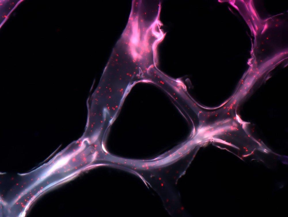 Micro RNA-Gerüst