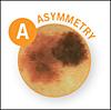 A = Asymmetry