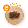 B = Border