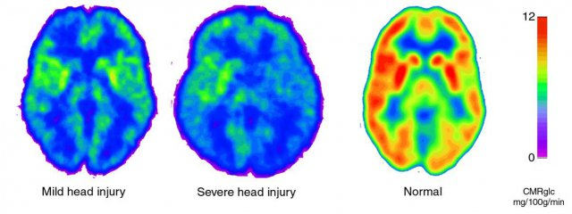 "This image depicts the ""metabolic crisis"" which occurs following a concussion.  at precisely the time that The brain requires blood flow to heal, the brain is significantly starved of blood supply."